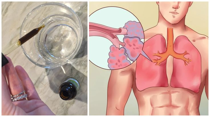 Add 3 Drops of Oregano Oil to Water and See What Happens to Your Lungs!  http://omigy.com/health/add-3-drops-oregano-oil-water-see-happens-lungs/