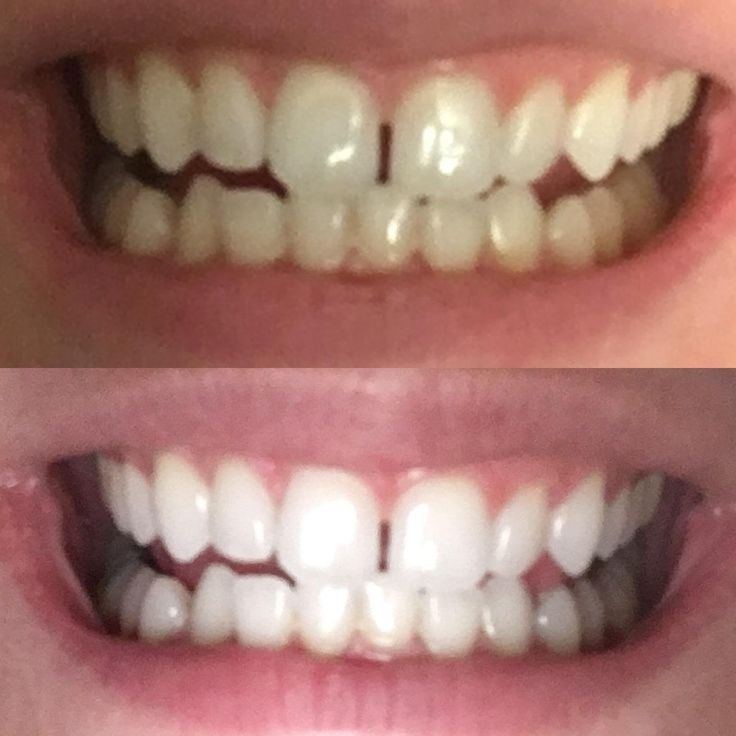 Before and After results after Using Active wow Charcoal Teeth whitening. For complete review of this Product visit www.fast-teethwhitening.com http://getfreecharcoaltoothpaste.tumblr.com