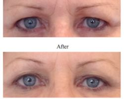 You don't need surgery to get a brow lift!