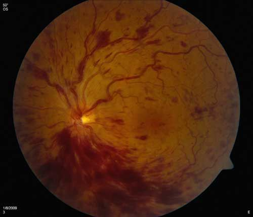 Why is there blood in my eye? Explanation of current diagnosis and treatment options for a retinal vein occlusion. #eyehealth