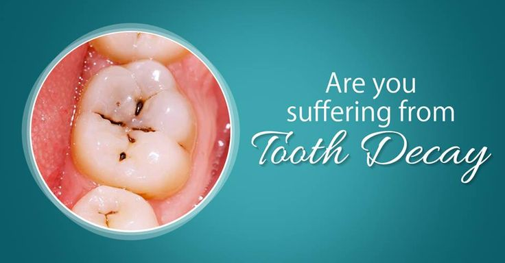 how to stop tooth decay pain