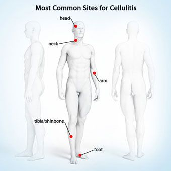 Get information on cellulitis (noncontagious spreading bacterial skin infection) treatment, causes, symptoms (pain, redness, swelling), and complications. See a picture of cellulitis.