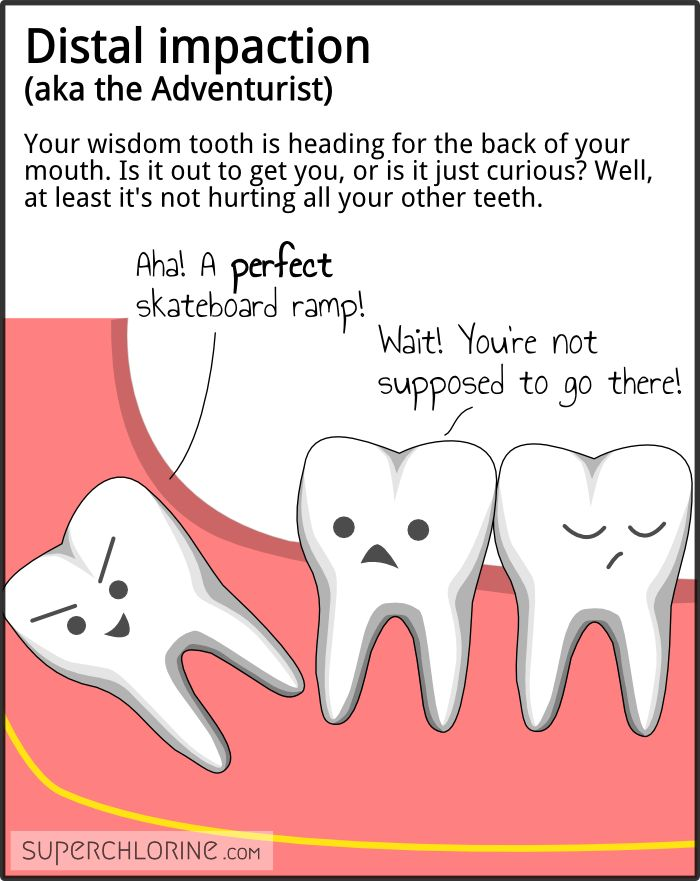 8 best Know Your Teeth images on Pinterest | Dental ...