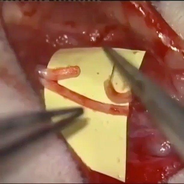 : @estudianteveterinario O pequeno mundo da cirurgia Vascular .. Incrível! #mvz #vetschool #vacular #vetmed #VeterinaryMedicine #medicinaveterinária #medicoveterinário #dvm #vet #veterinary #veterinaria #veterinarian #vettech #vets #vetbr #anestesiavet #equine #surgery #cirurgiavascular