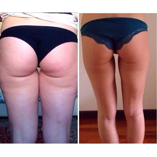 pandoram_ showing us her results using my guide! This is 60 days ...