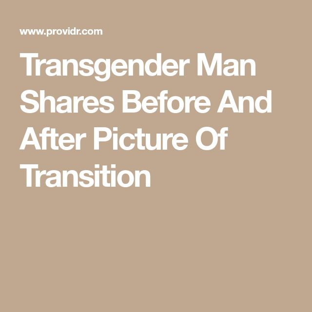 Transgender Man Shares Before And After Picture Of Transition