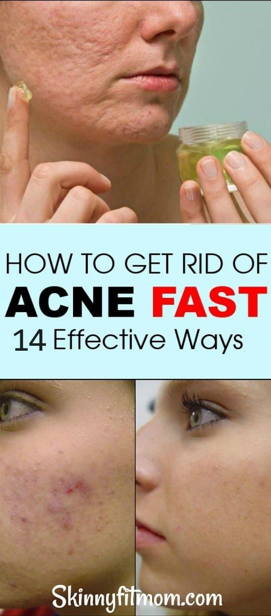 14 Potent Homemade Acne Treatment: Get Rid Of Acne, Acne Scars, Pimples in 2 Days