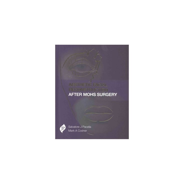 Aesthetic Facial Reconstruction After MOHs Surgery (Hardcover) (M.D. Salvatore J. Pacella & M.D. Mark A.