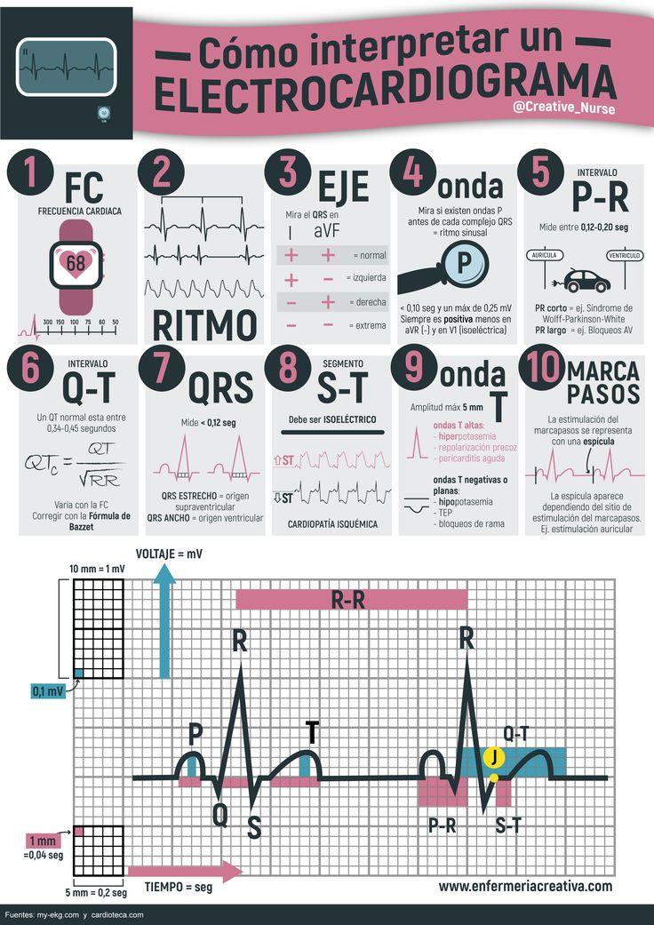 Como interpretar un ECG