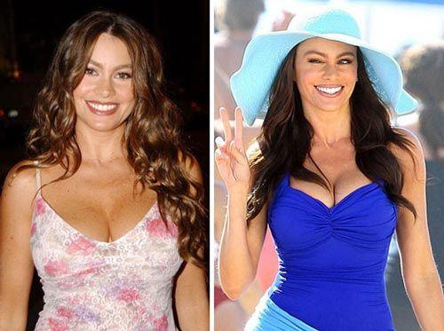Celebrity Sofia Vergara #PlasticSurgery Before After