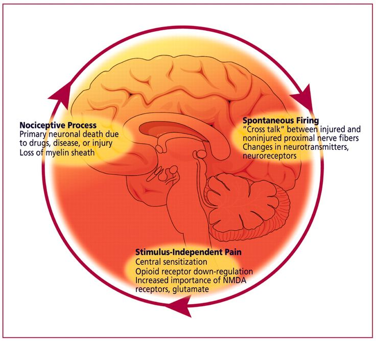 management of pain in trigeminal neuralgia Classical trigeminal neuralgia (ctn) is a severe neuropathic pain in the distribution of one or more branches of the trigeminal nerve, which occurs in recurrent.