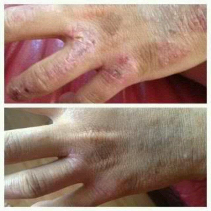 Suffer from Excema? We can help with seacret skin care. No more medications that are putting toxins into your body ~ let us help starting today!!! http://beta.seacretdirect.com/KT68/en/us/