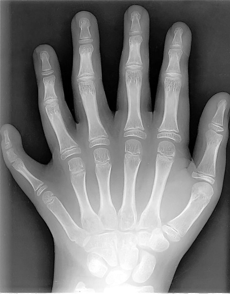 polydactylism-Six fingers-were noted to be in the giants of old-such as Goliath and his brothers, in the old testament.