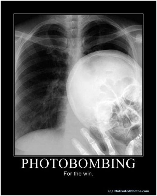 X-Ray humor: Gotta love it!! We've all done it..... Lol