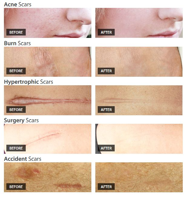 Can Dermefface Scar Reduction Therapy Cream Remove The Scars from your Face. We Review the Effectiveness of this Scar Fading Cream to see if Acne Scars and other Injury Scars can be Removed.