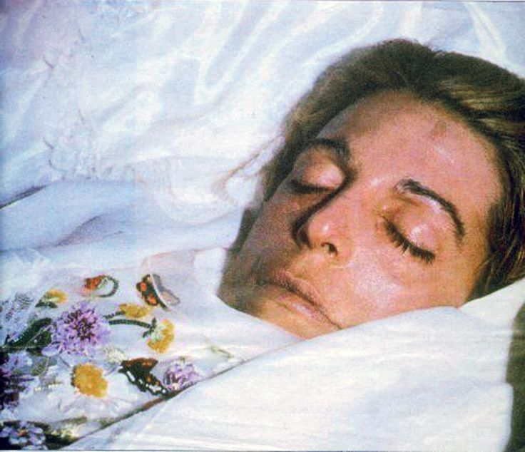 Famous celebrity morgue pictures of bonnie