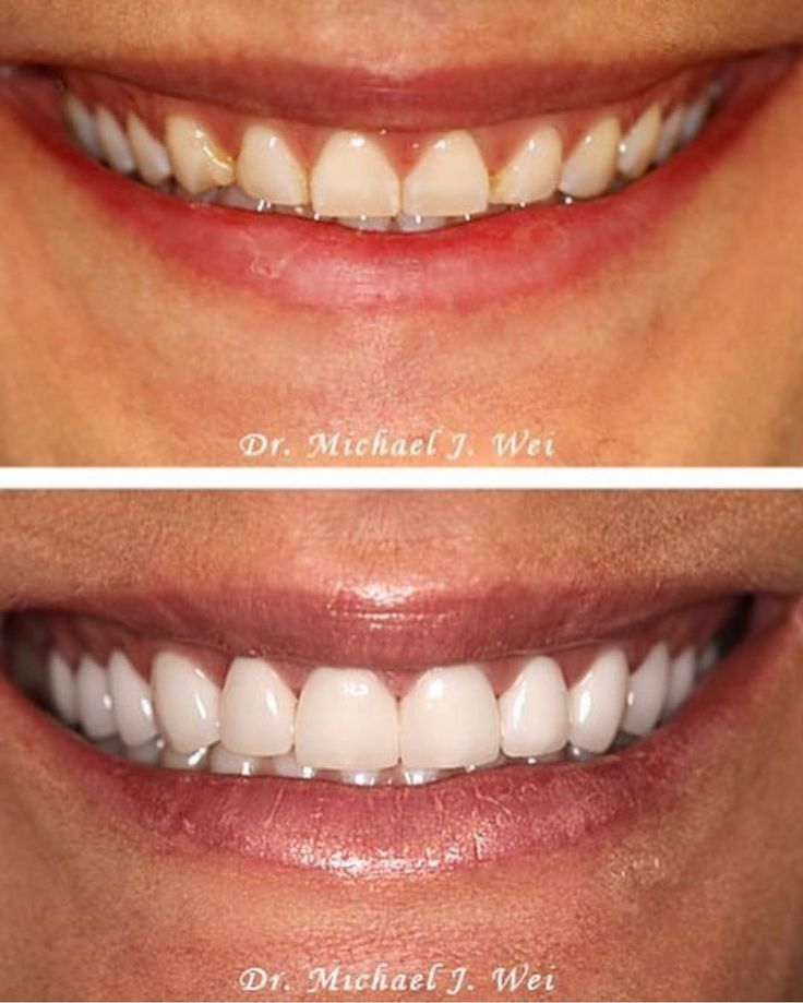 Awesome smile transformation using 12 minimum prep ultra thin porcelain veneers by @drmikewei  Follow him for more cases like this   #dentalstudent #teeth #dental #odontologia #dentistry #braces #dentalschool #dentalassistant #dentalhygienist #dentalhygieneschool #teethwhitening #cosmeticdentistry #cosmeticsurgery #toothfairy #implants #dentures #rootcanal #odonto #smile #whiteteeth #cavity #cavityfree #alldentfor#dentalstudent #teeth #dental #odontologia #dentistry #braces #dentalschool