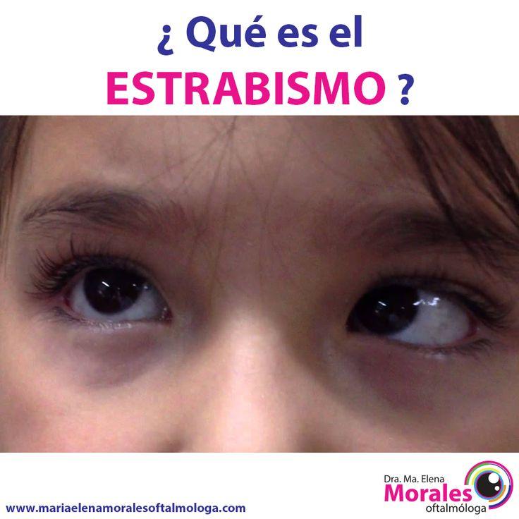 ¿¿ Qué es el estrabismo ?? El estrabismo es un problema visual que hace que los ojos no estén alineados correctamente y apunten en diferentes direcciones. Un ojo puede mirar hacia delante, mientras que el otro se vuelve hacia adentro, hacia afuera, hacia arriba o hacia abajo. El giro del ojo puede ser consistente o puede ir y venir. La alineación correcta puede intercambiar o alternarse de un ojo al otro.