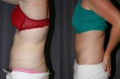How To Prevent Saggy Skin After Gastric Bypass