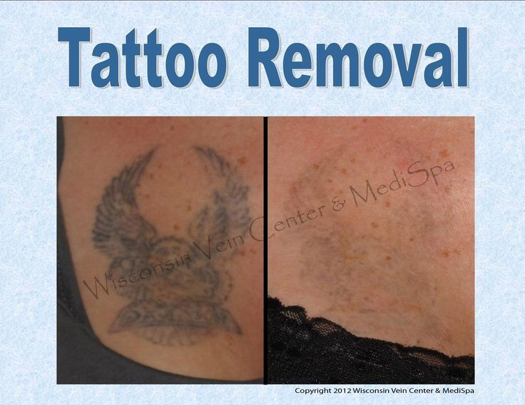1000 ideas about removal scars on