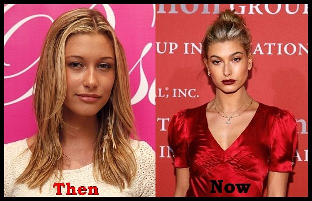 Hailey Baldwin Plastic Surgery Rumors Before And After Cosmetic Fillers