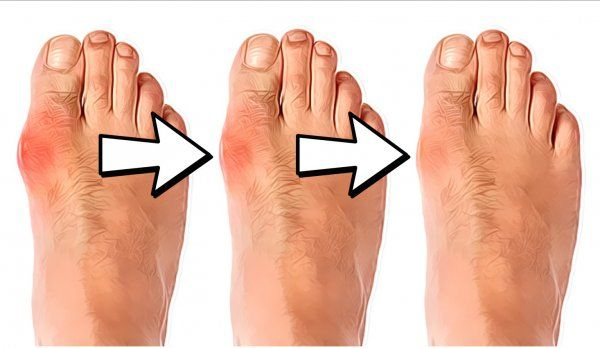Is There Any Natural Way to get Rid of Bunions? Bunions can not only be unsightly they can also be quite painful While these hard formations that collect