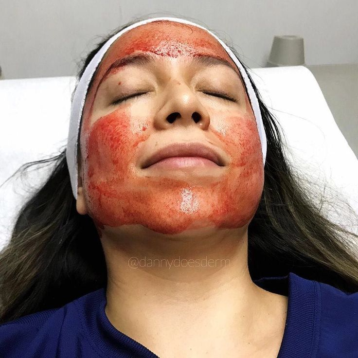 / A C N E  S C A R I N G  Ever hear of someone having their own blood used as a treatment for acne scarring? This procedure is called PRP uses a component of your blood called platelets which are filled with tons of growth factors and anti-inflammatory agents. When it is applied to your skin it induces healthy collagen growth and helps to place new stem-cell agents in the skin. Basically it helps to enhance facial and skin appearance using your bodys own products  and at the same time since…
