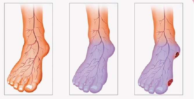 ↓Do you have poor blood circulation?! You should read this article.