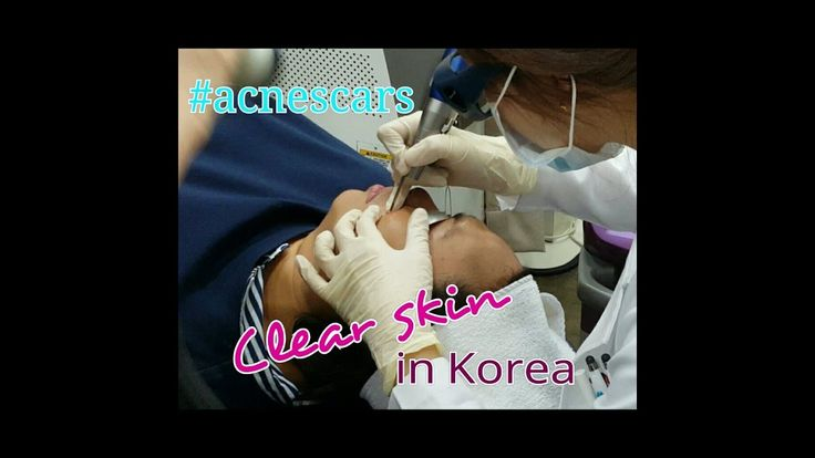 Consultation Time! 💉💉 Ashwaq from Dubai and Ary from Indonesia traveled together to Korea and visited us at DA Dermatology to undergo facial skin care. .  Check out the full video in our Youtube Channel DA Plastic Surgery International ! https://www.youtube.com/watch?v=XPNrfCGG_gk . Contact us for a free online consultation! 🌏. TEL/Whatsapp : +82 10 3492 7111 Email : info-en@daprs.com Kakao : daprsen Skype/Line/Wechat : daplasticsurgery Webpage : http://daprs.com/en . Follow Us!