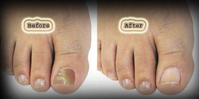 how to get rid of toenail fungus reddit