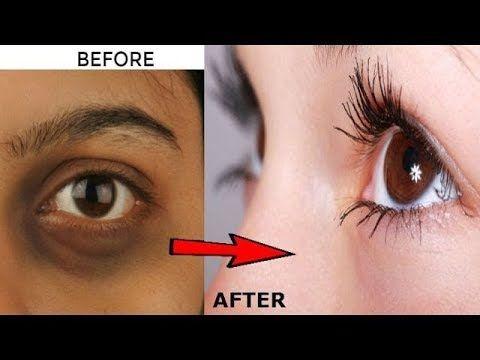 7 मिनट के इलाज से आँखों के डार्क सर्कल हटाएँ Dark Circles home remedy - YouTube