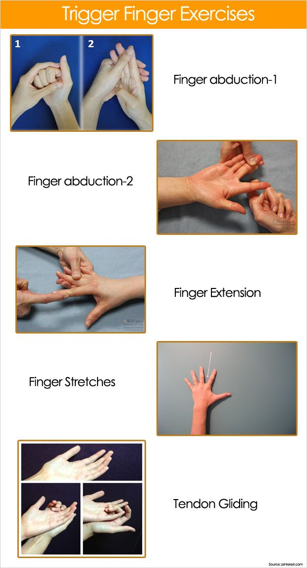 Trigger Finger Strengthening Exercises