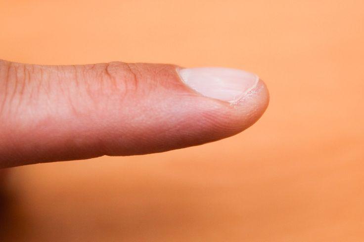 How to Treat an Ingrown Fingernail
