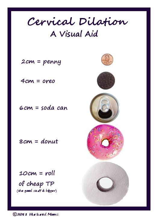cervical dilation- A Visual Aid. I've been looking for this chart!