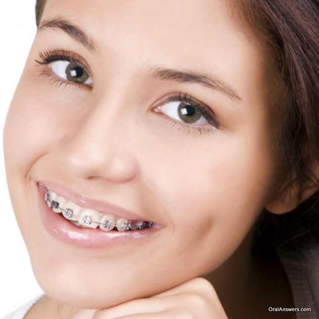 163 Best Images About Braces Colors On Pinterest Black