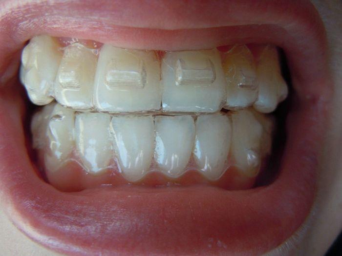 Cheap Invisalign Express Teeth Braces