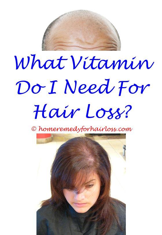 cat hair loss stomach near death - anti hair loss ingredients.coconut oil use for hair loss hair loss tablets viviscal major hair loss in cats 6406955174