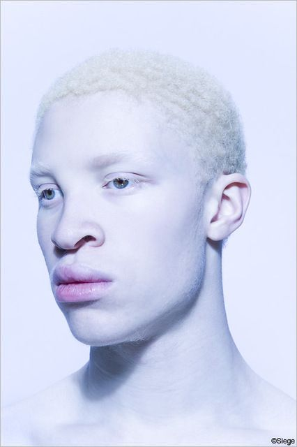 "Hot Albino models | Black albino model in Katy Perry's ""E.T."""