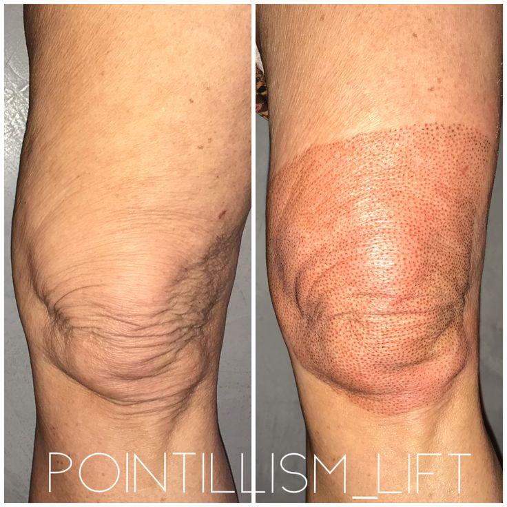 Plasma Fibroblast Skin Tightening Treatments Plasma Anti Aging Skin Products