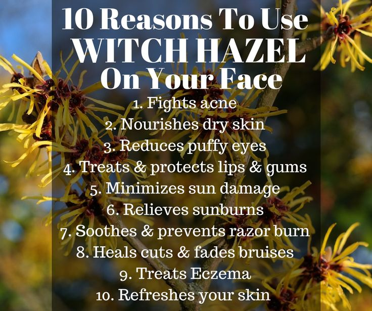 WITCH HAZEL has so many healthy uses and benefits. Are you using it at home? We like the organic type best. (affiliate link)