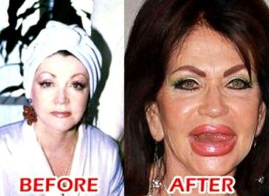 Jackie Stallone Um No Celebrities Before After