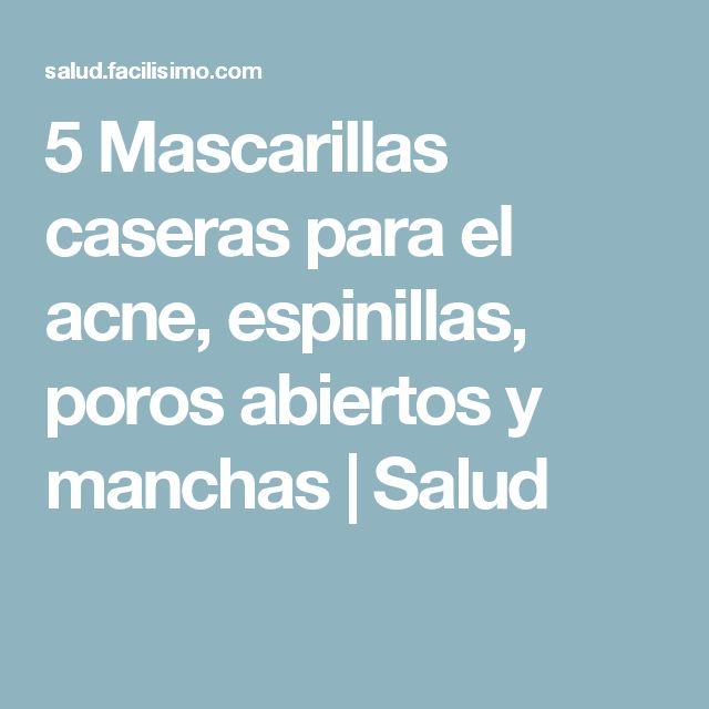 5 Mascarillas caseras para el acne, espinillas, poros abiertos y manchas | Salud