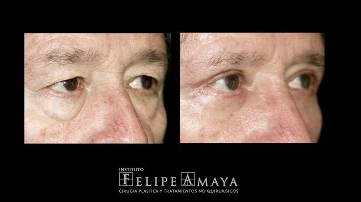 Con la cirugía de párpados o Blefaroplastia se retira el exceso de piel que se presenta con la edad en el párpado superior y se corrigen las bolsas que se forman bajo el párpado inferior, consiguiendo un rejuvenecimiento de la mirada sin cambiar la expresión de los ojos  www.felipeamaya.com/cirugia-parpados/ #InstitutoFelipeAmaya #UnidadDeRejuvenecimiento #ElEnvejecimientoPuedeRevertirse