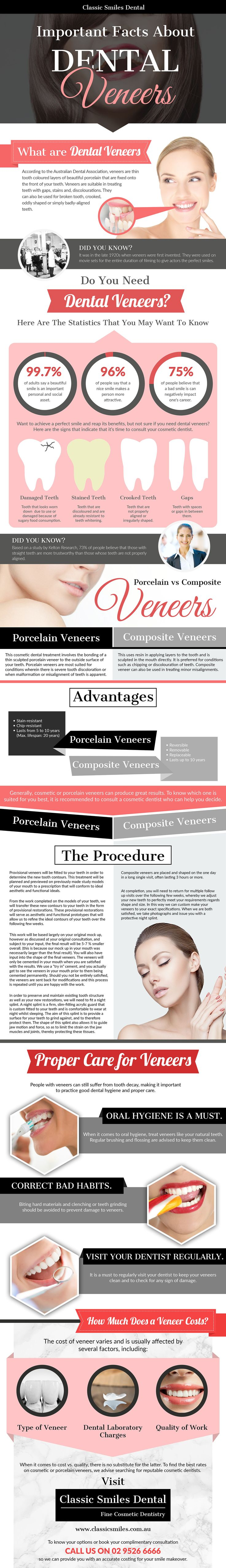 Important Facts About Dental Veneers