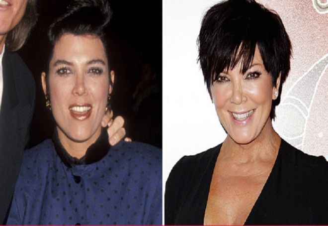 Kris Jenner before and after plastic surgery