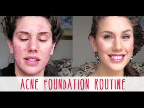 See my full acne coverage foundation routine for covering scars or pimples to get flawless-looking skin :) I am very self-conscious about my skin and taking ...