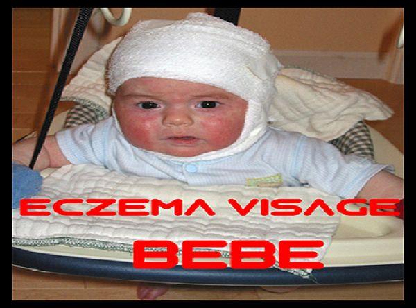 L'eczema visage bebe peut être facilement confondue avec le chapeau de berceau, l'autre beaucoup moins d'éruption rouge et squameuse de la petite enfance.