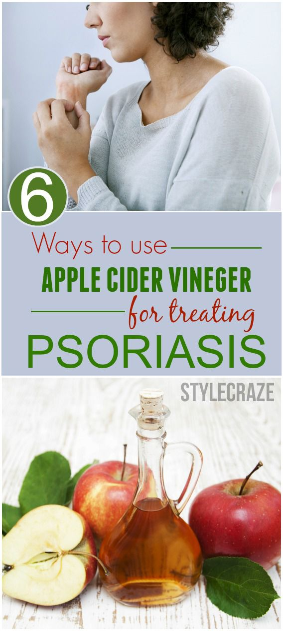 6 Ways To Use Apple Cider Vinegar For Treating Psoriasis