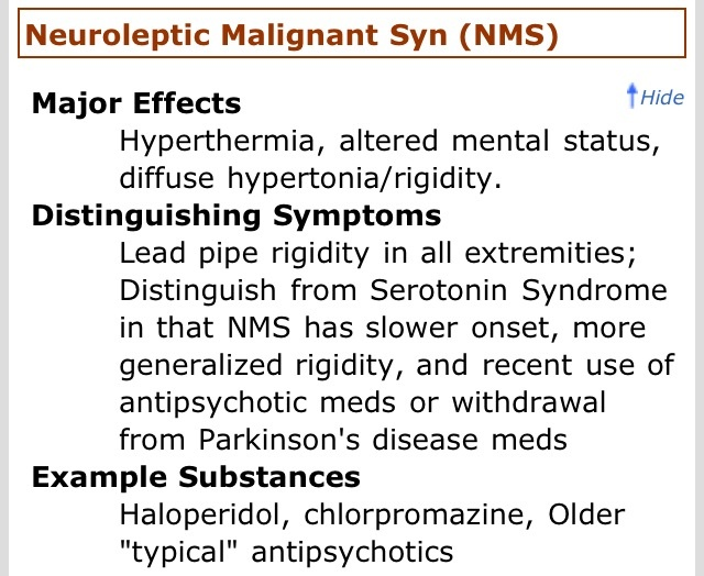 A research on neuroleptic malignant syndrome - Research