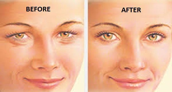 Here's How To Tighten Loose Skin On The Eyelids In Just 4 Steps ! - http://healthywomensblog.com/heres-how-to-tighten-loose-skin-on-the-eyelids-in-just-4-steps.html